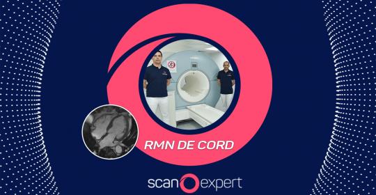 Investigatii cardiace de inalta calitate! RMN CORD disponibil in Centrele de Imagistica Medicala Scanexpert Brasov și Iași