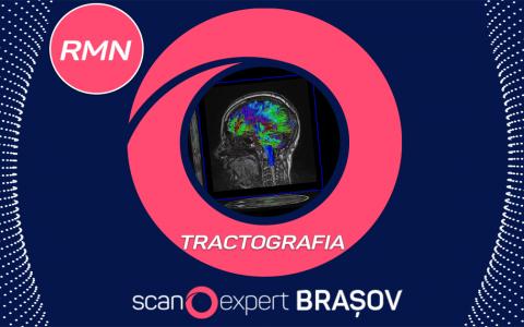 Investigații speciale prin Rezonanță Magnetică Nucleară ( RMN ) : TRACTOGRAFIA + Prezentare Caz