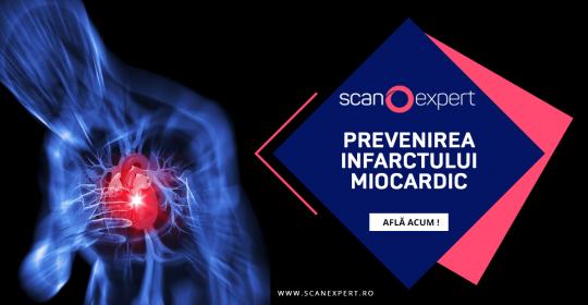 Prevenirea infarctului miocardic prin metode moderne de investigatie de imagistica medicala – Computer Tomografie