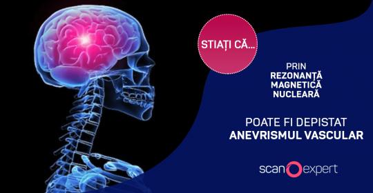 Stiați că … prin rezonanta magnetica nucleara poate fi depistat anevrismul vascular ?