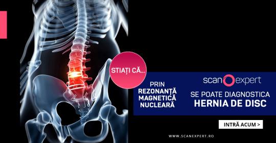 Stiați că … prin rezonanta magnetica nucleara se poate diagnostica hernia de disc