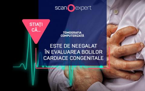 Știați că…. tomografia computerizată este de neegalat în evaluarea bolilor cardiace congenitale