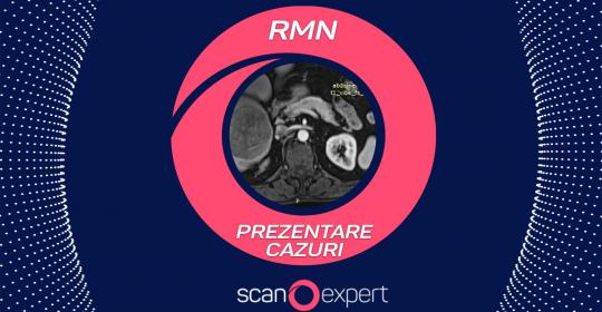 VIDEO: Prezentare cazuri Rezonanta Magnetica Nucleara ( RMN )