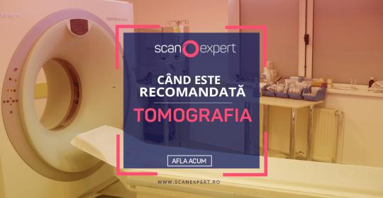 Când este recomandată tomografia?