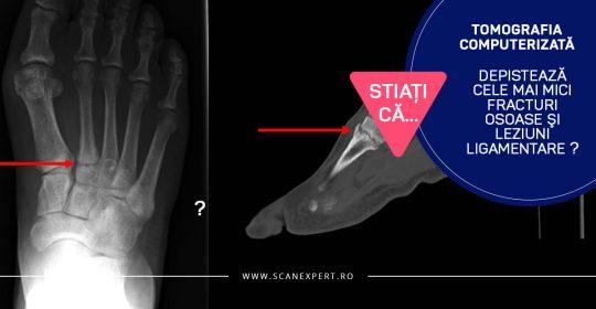 Știați că…. tomografia computerizată depistează cele mai mici fracturi osoase și leziuni ligamentare ?