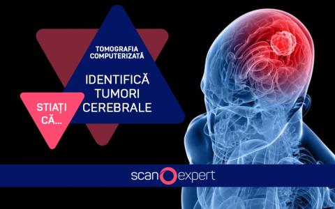 Știați că…. tomografia computerizată identifică tumori cerebrale