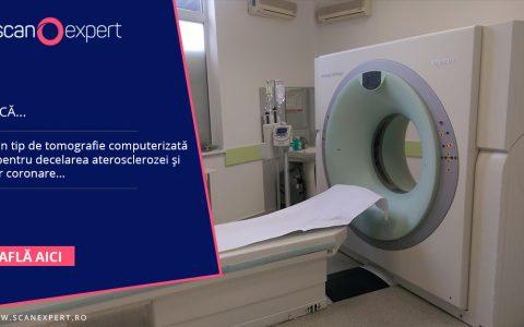 Ştiaţi că ….  Există un tip de tomografie computerizata folosit pentru decelarea aterosclerozei şi a bolilor coronare?