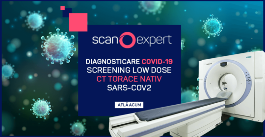 Diagnosticare COVID19: Screening low dose CT Torace nativ SARS-CoV2