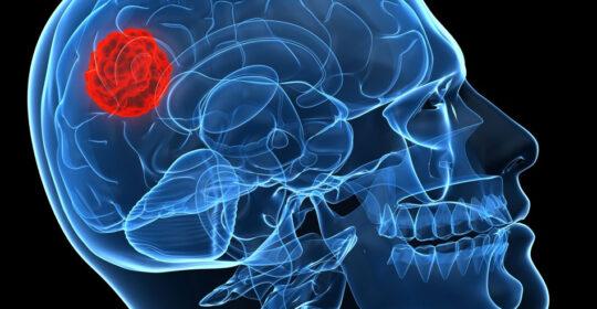 IRM cerebral + spectroscopie