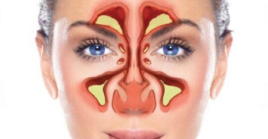 Știați că… examinarea RMN la nivelul sinusurilor trebuie efectuată dacă există motive să se suspecteze că infecția s-a răspândit la distanță de sinusuri și prezintă risc de complicații.