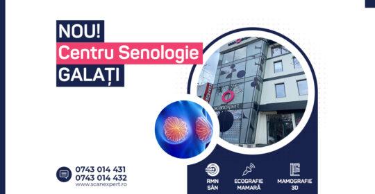 Scanexpert Galați – Centru specializat în senologie, prin servicii de imagistică medicală de înaltă calitate